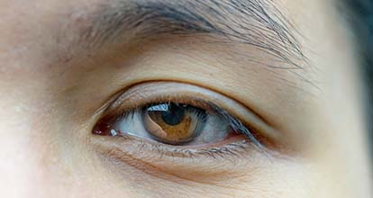 眼瞼下垂の写真